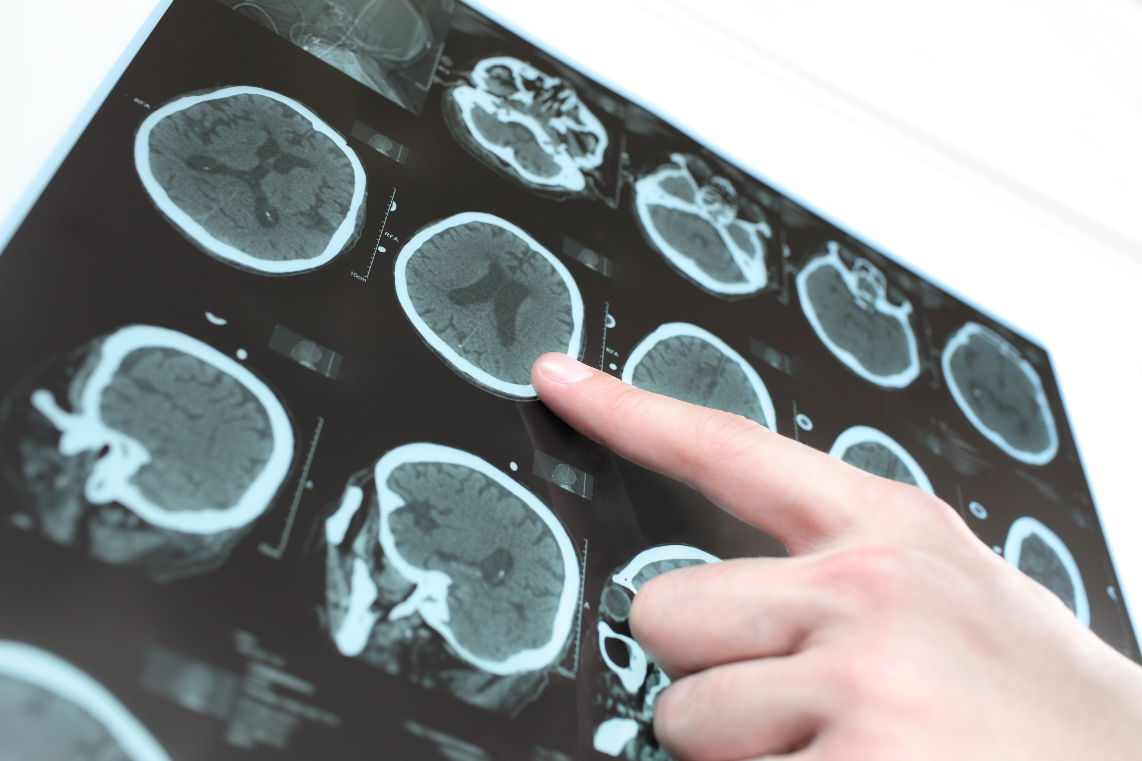 Immune system involved in rare epilepsy - scilog