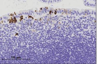 Proben des Dünndarms zeigen virale Infektionen, die mit dem Ausbruch von Zöliakie in Zusammenhang stehen könnten.