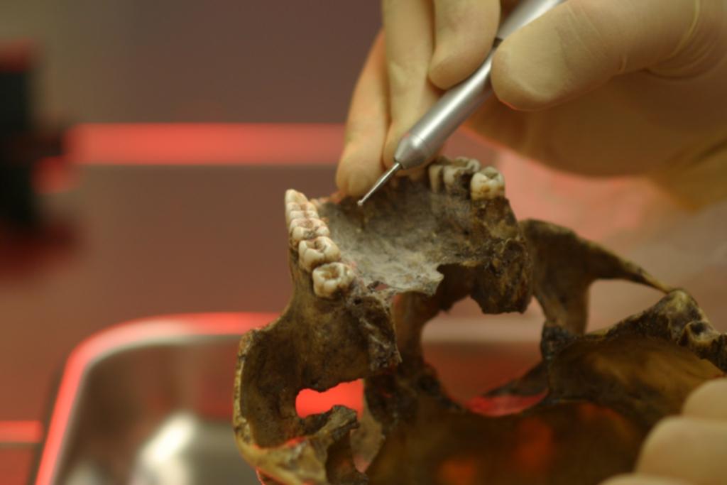 Zähne sind ein gutes Probenmaterial, denn das innere Gewebe des Zahnes enthält viel DNA.