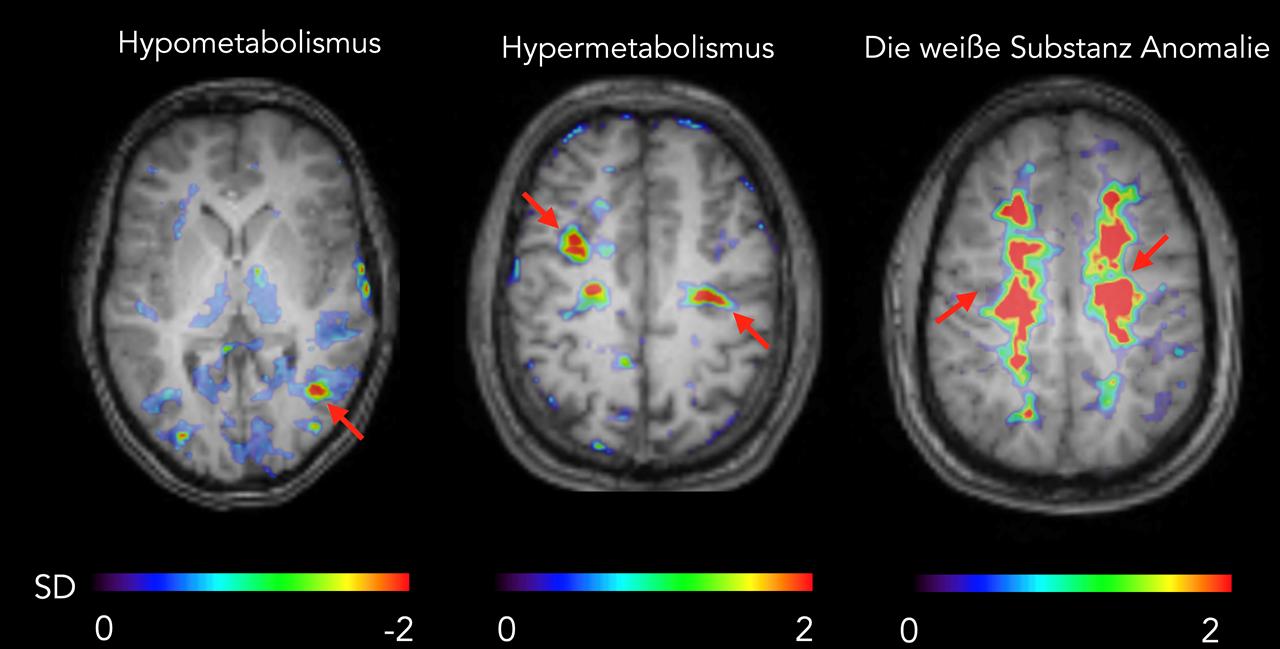 Die Abbildung zeigt Hirnscans von hypometabolischen, hypermetabolischen und bilateralen abnormalen Zonen, die mit dem entsprechenden MR-Bild überlagert sind.