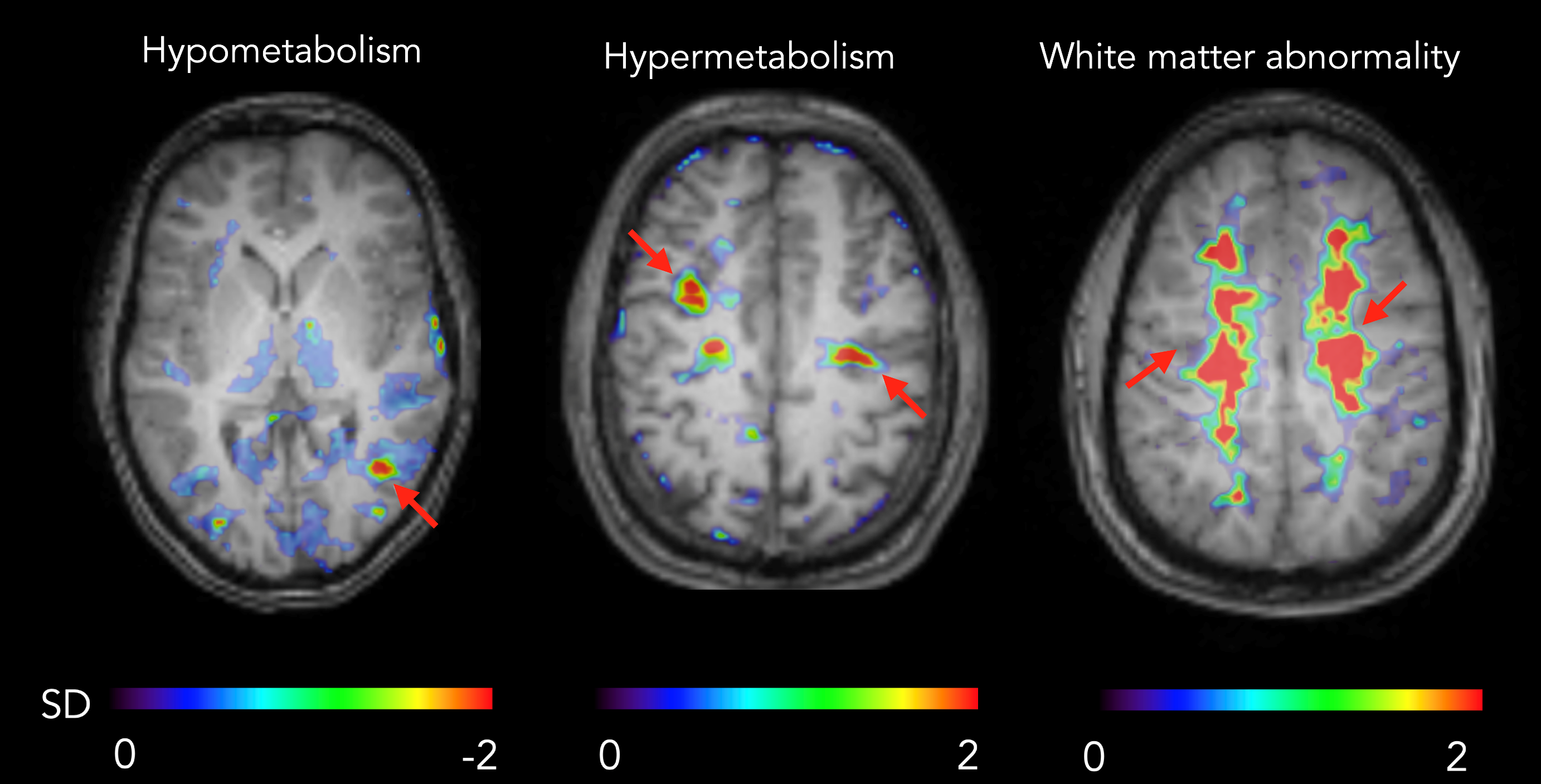 The image shows brain scans of hypometabolic, hypermetabolic and bilateral abnormal zones overlaid with a corresponding MR image.
