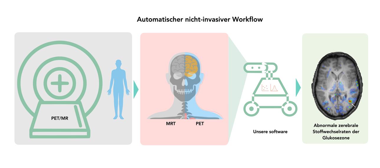 Grafik eines automtischen nicht-invasiven Workflows von PET/MR-Aufnahmen