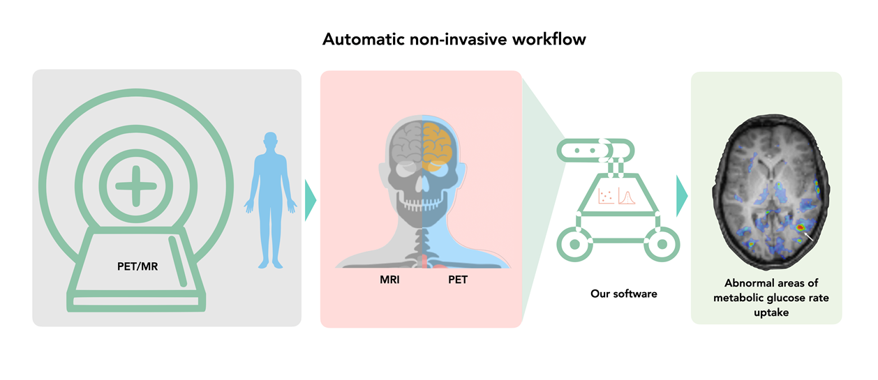 Graphic showing the workflow of automatic non-invasive method to determine the brain's sugar metabolism.